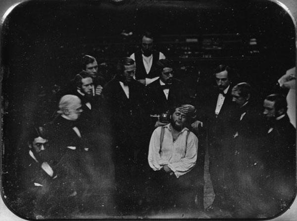 анестезия эфиром-1846 г.