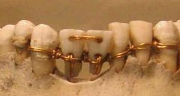 Зубные протезы в древнем Египте-
