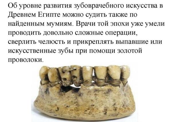 Зубные протезы в древнем Египте=