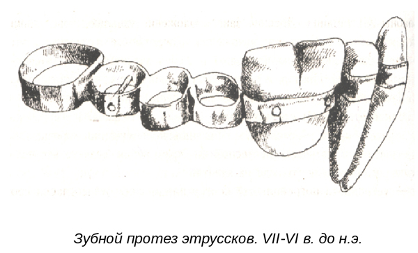 зубной протез этруссков